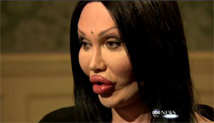 Pete Burns on his plastic surgery: pus squirting out, science fiction horror
