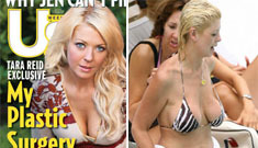 Tara Reid comes clean about her botched plastic surgery