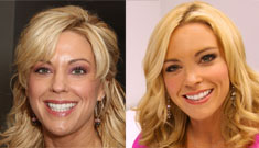 What did Kate Gosselin do to her face: facelift, fillers, and/or nips and tucks?