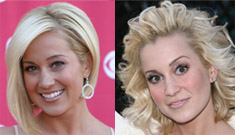 Kellie Pickler: Plastic surgery or too much botox?