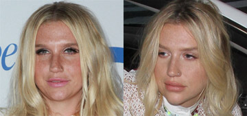 Kesha's face looks very different: lip injections, chin implant & what else?