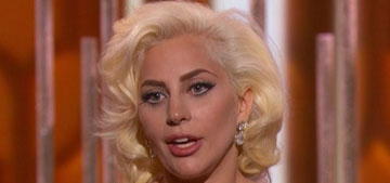 Star: Lady Gaga overdid the Botox & fillers on her nose, lips & forehead