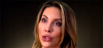 Chloe Lattanzi had fillers removed from her face: 'I like the way I look naturally'