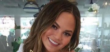 Chrissy Teigen shows off her Lip Sync Battle scar – a huge bruise