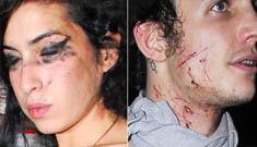 """Amy Winehouse Blames Herself"" Links"