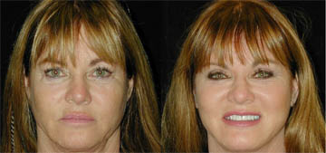 Real Housewives of OC's Jeana Keough shares facelift photos: 'I think I look great'