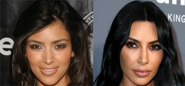 Kim Kardashian claims she's 'never' had a nose job: 'Everyone thought I did'