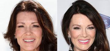 Lisa Vanderpump sort-of denies getting a facelift, uses injectables to reshape her face