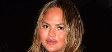 Chrissy Teigen shares video getting Botox in her armpits to prevent sweating