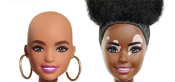 Mattel adds more diverse Barbies, including dolls with vitiligo and alopecia