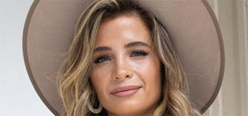 Naomie Olindo of Southern Charm, 28, got fillers and Botox and shared photos